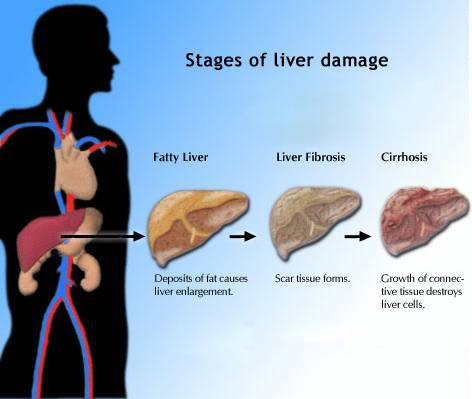 final stages of liver cirrhosis symptoms